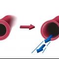 Бета-блокатори - ефективні препарати для лікування захворювань серця