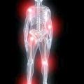 Хвороби суглобів: причини і симптоми