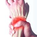Болить кисть руки: основні причини