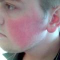 Гіперемія шкіри: причини виникнення і методи лікування