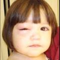 Ячмінь на оці у дитини. Ячмінь у дитини: фото, причини, лікування