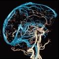 Які функції виконують судини головного мозку і як їх зміцнити?