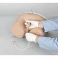 Катетеризація сечового міхура. Для чого ця процедура?