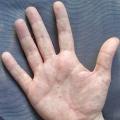 На руках висип: можливі причини появи