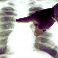 Основні симптоми раку легенів