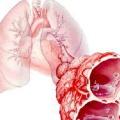 Набряк легені: ознаки, опис, лікування