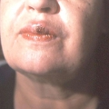 Первинна ознака сифілісу - тверда шанкра