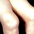 Ревматоїдний артрит: симптоми та лікування