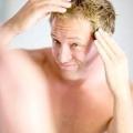 Шишки на голові: причини, симптоми і лікування