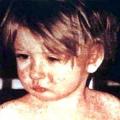 Симптоми кору у дитини, діагностика та лікування