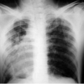 Туберкульоз легень: симптоми і лікування