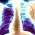 Туберкульоз легень. Симптоми, види, лікування