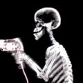 Навіщо потрібен рентген легенів?