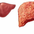 Дієта при цирозі печінки - раціон і рецепти