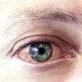 Очі червоні: що робити? Очі червоні у дитини: лікування