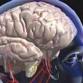 Як лікувати струс мозку? Препарати при струсі мозку