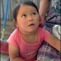 Гіпотиреоз у дитини. Гіпотиреоз у дітей: причини, симптоми і лікування