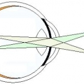 Око як оптична система. Оптична система ока включає