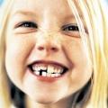 Як прорізуються молочні зуби у дітей?