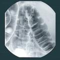 Коли і навіщо потрібен рентген кишечника?