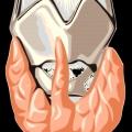 Причини зниженої функції щитовидної залози. Порушення функції щитовидної залози