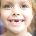 Зміна зубів у дітей: коли і як