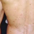 Плями на шкірі: причини появи