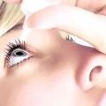 Синдром сухого ока: симптоми, причини і лікування